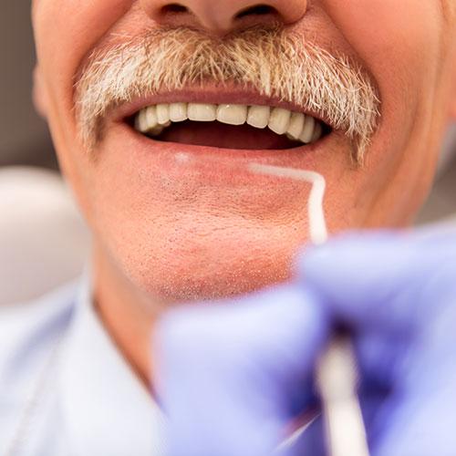 Dentisterie de restauration